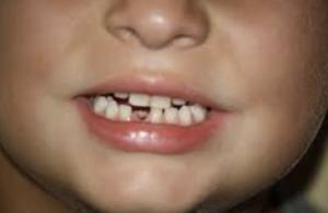 Qué significa soñar que se te caen los dientes