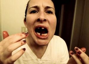 Significado de soñar que se te caen los dientes
